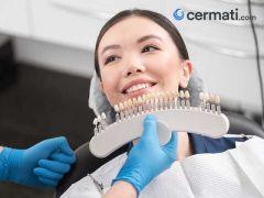 Punya BPJS Kesehatan? Gunakan Untuk Perawatan Gigi Anda